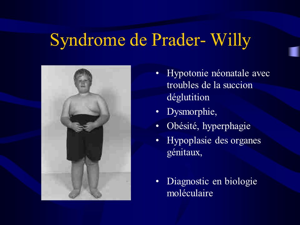 Syndrome de Prader- Willy