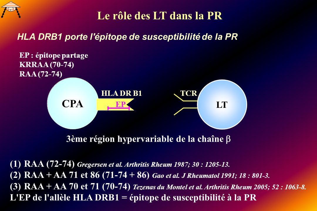 HLA DRB1 porte l épitope de susceptibilité de la PR