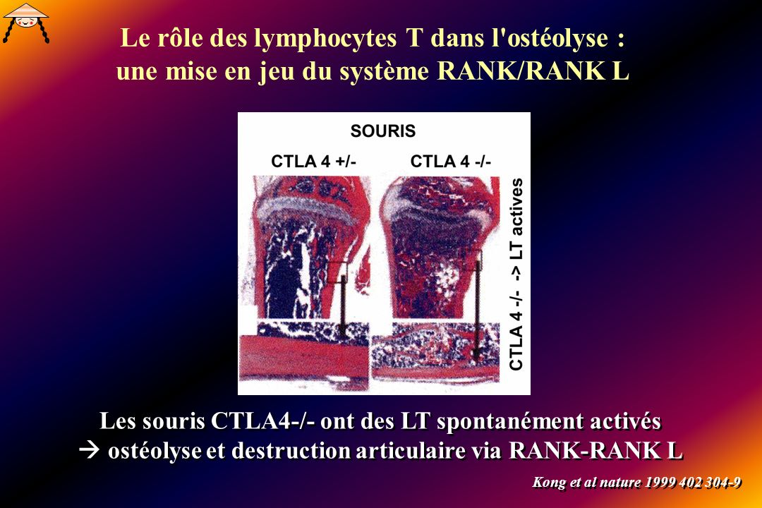 Le rôle des lymphocytes T dans l ostéolyse : une mise en jeu du système RANK/RANK L