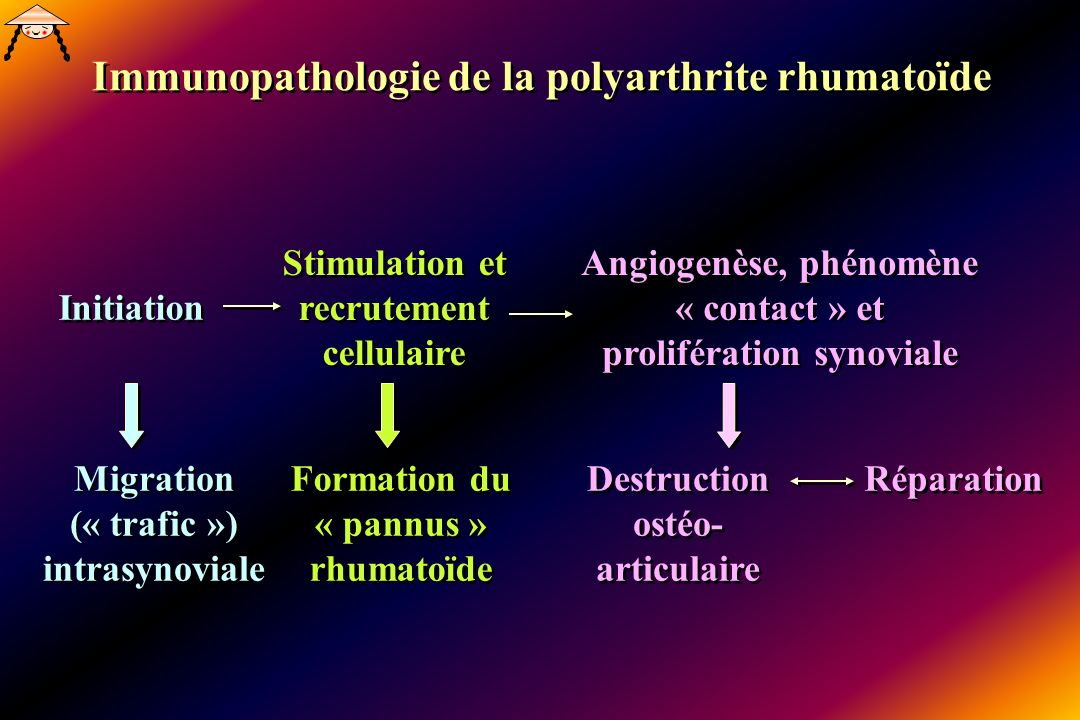 Immunopathologie de la polyarthrite rhumatoïde