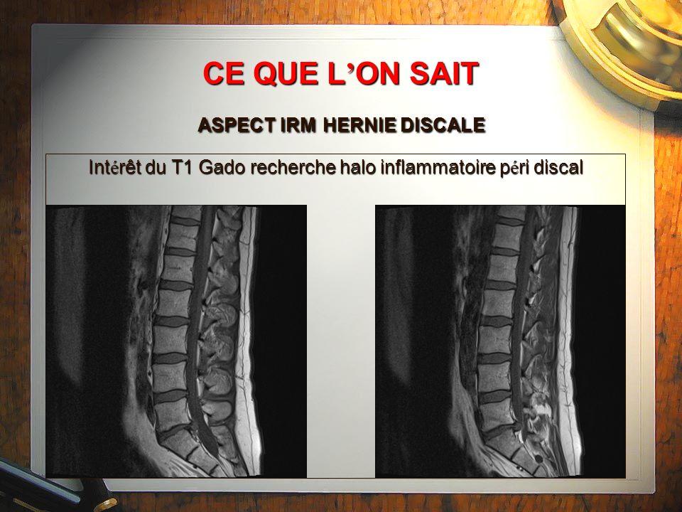 CE QUE L'ON SAIT ASPECT IRM HERNIE DISCALE