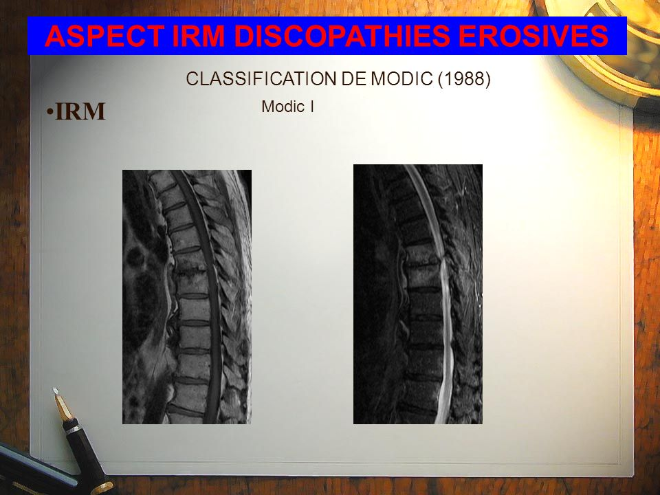 ASPECT IRM DISCOPATHIES EROSIVES