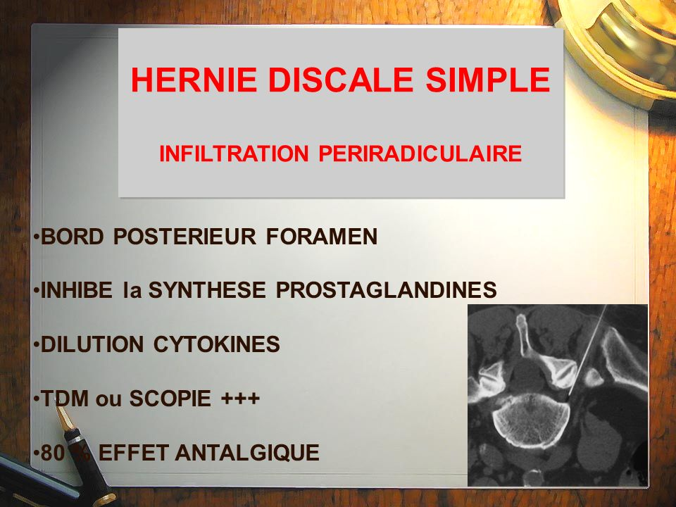 HERNIE DISCALE SIMPLE INFILTRATION PERIRADICULAIRE