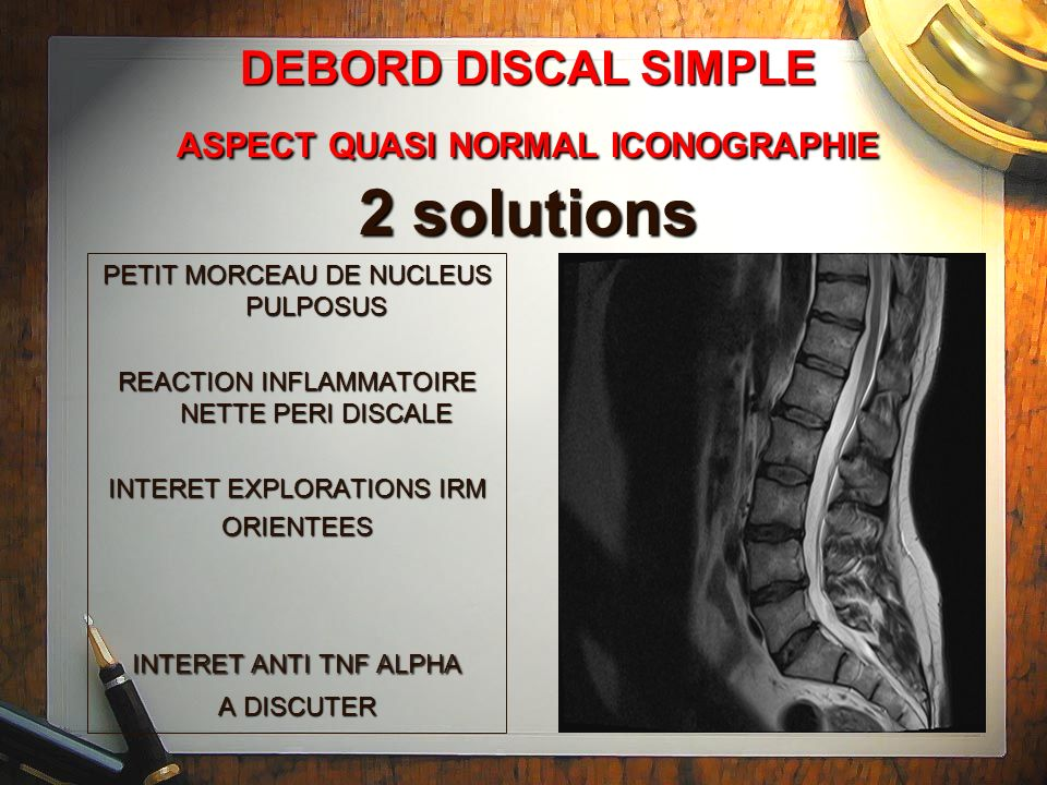 DEBORD DISCAL SIMPLE ASPECT QUASI NORMAL ICONOGRAPHIE 2 solutions
