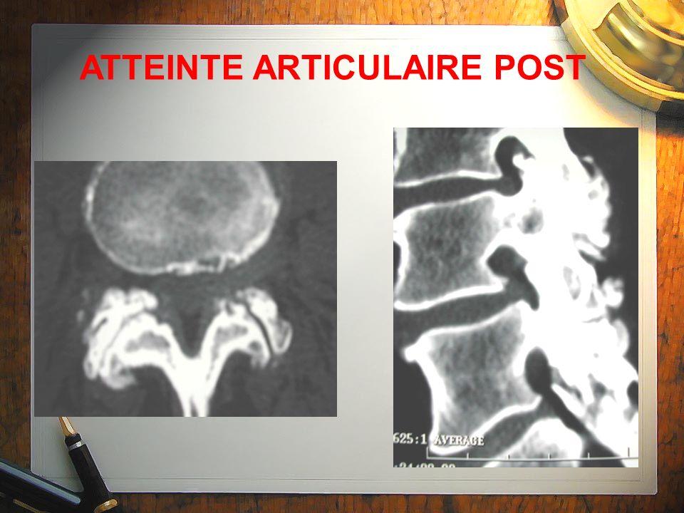ATTEINTE ARTICULAIRE POST