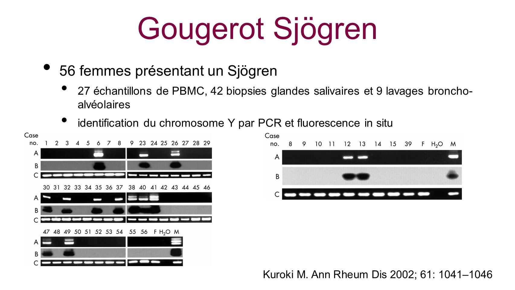 Kuroki M. Ann Rheum Dis 2002; 61: 1041–1046