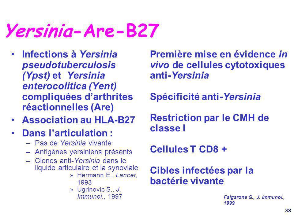 Yersinia-Are-B27 Infections à Yersinia pseudotuberculosis (Ypst) et Yersinia enterocolitica (Yent) compliquées d'arthrites réactionnelles (Are)