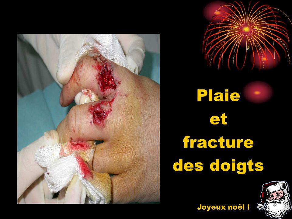 Plaie et fracture des doigts Joyeux noël !
