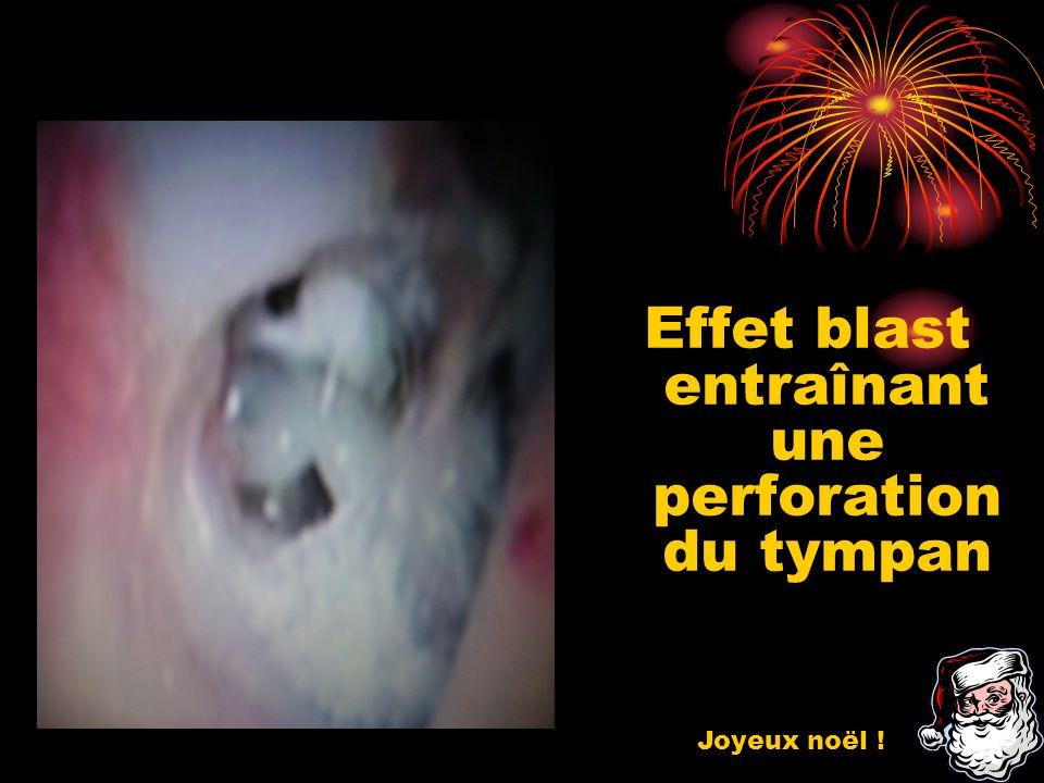 Effet blast entraînant une perforation du tympan