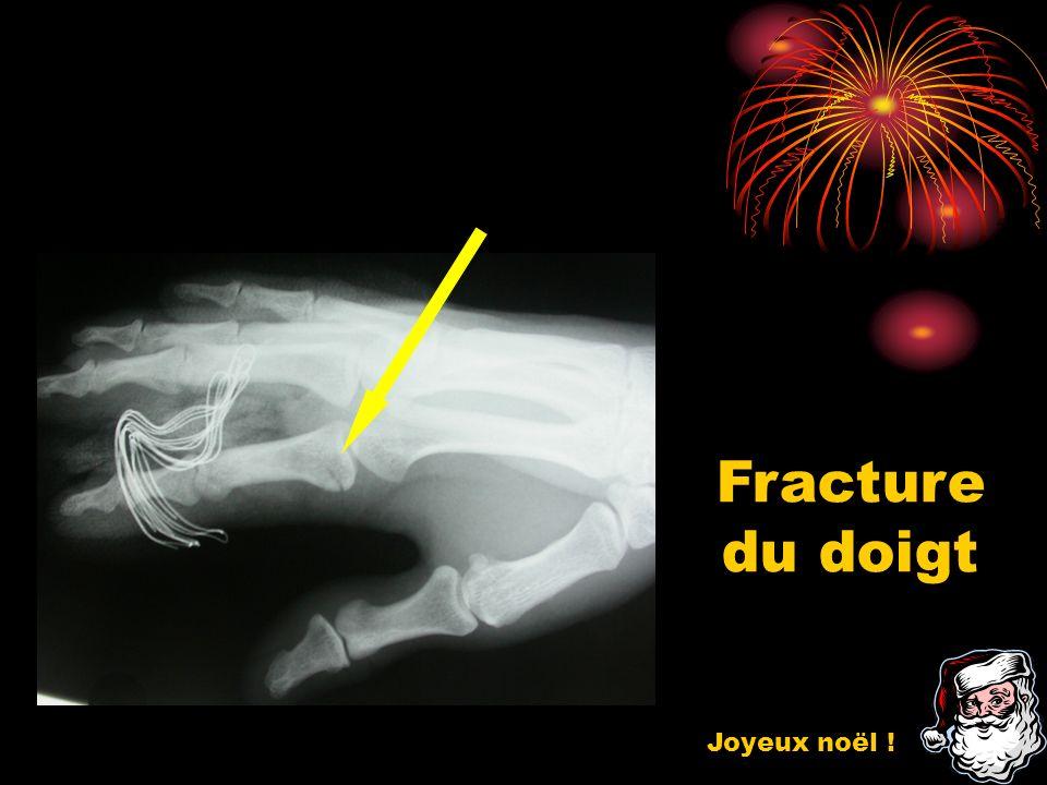 Fracture du doigt Joyeux noël !