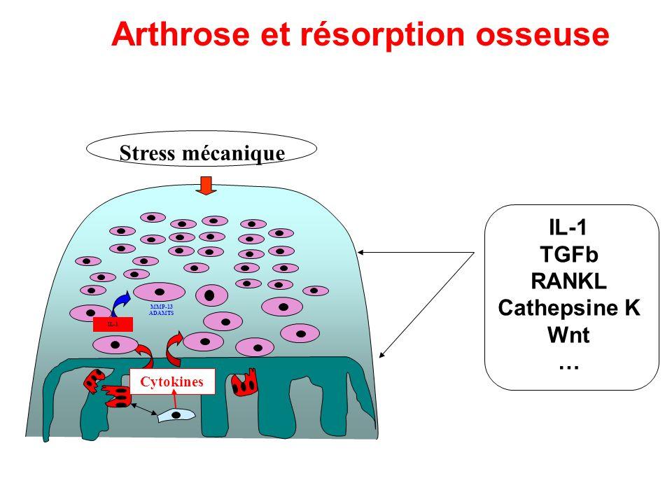 Arthrose et résorption osseuse