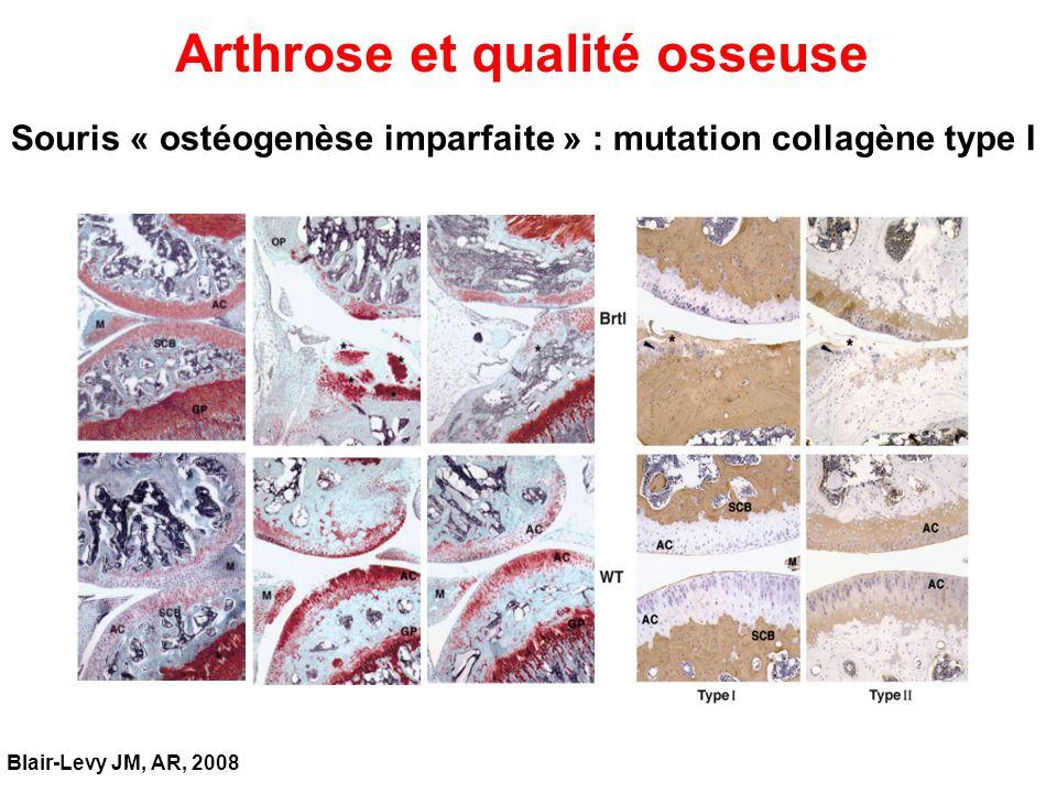 Arthrose et qualité osseuse