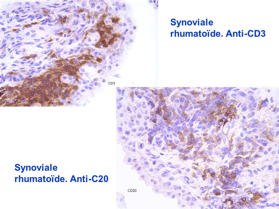 Synoviale rhumatoïde. Anti-CD3