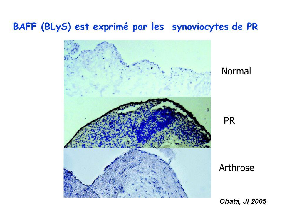 BAFF (BLyS) est exprimé par les synoviocytes de PR