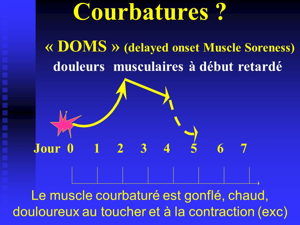 Courbatures « DOMS » (delayed onset Muscle Soreness)