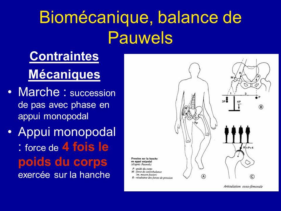 Biomécanique, balance de Pauwels
