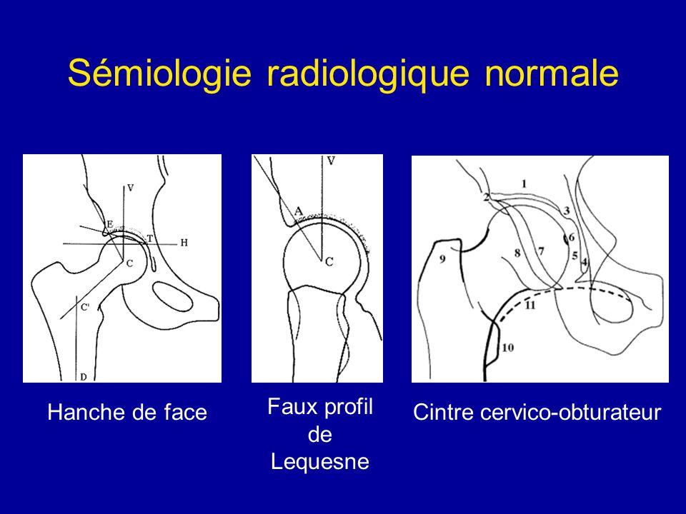 Sémiologie radiologique normale