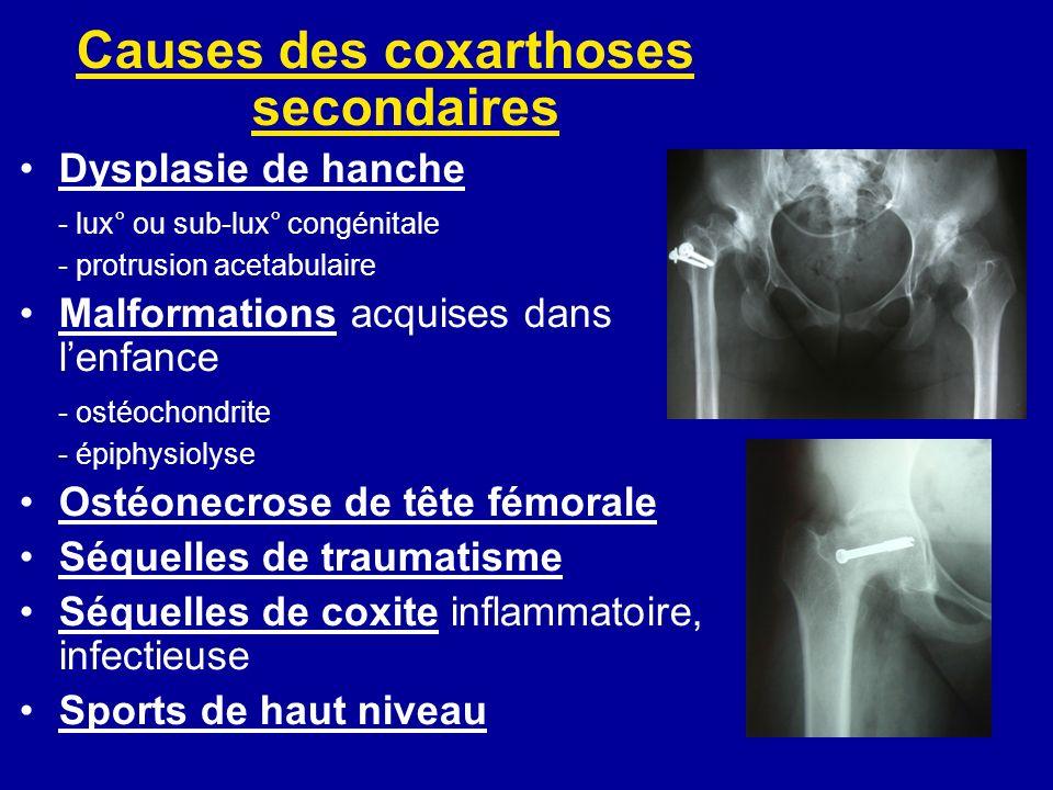 Causes des coxarthoses secondaires