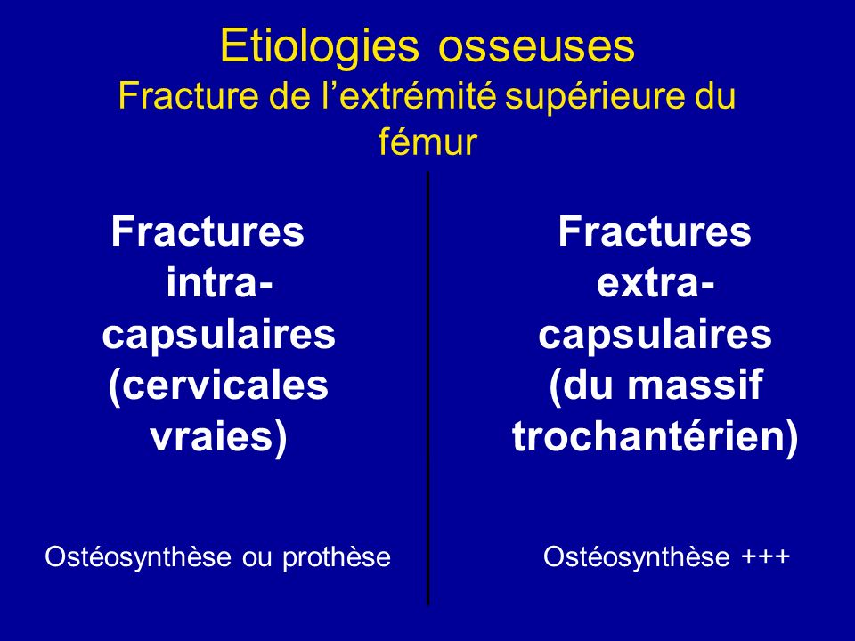 Etiologies osseuses Fracture de l'extrémité supérieure du fémur