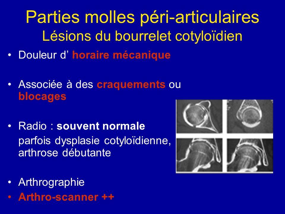 Parties molles péri-articulaires Lésions du bourrelet cotyloïdien