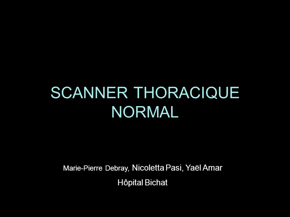 SCANNER THORACIQUE NORMAL