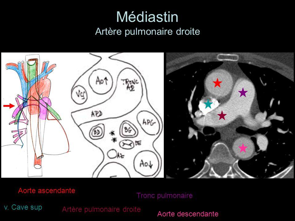 Médiastin Artère pulmonaire droite