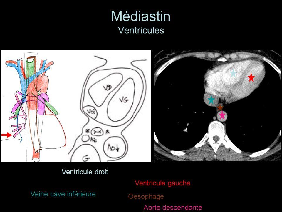 Médiastin Ventricules