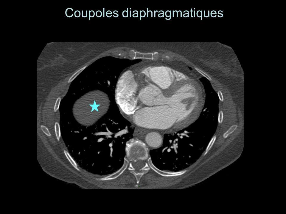 Coupoles diaphragmatiques