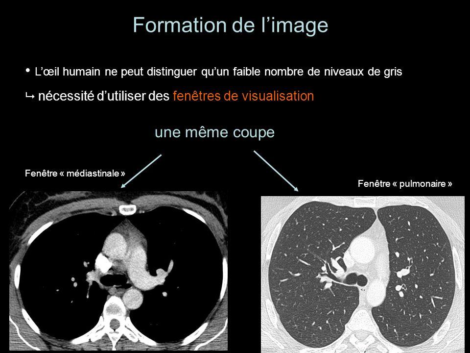 Formation de l'image L'œil humain ne peut distinguer qu'un faible nombre de niveaux de gris.  nécessité d'utiliser des fenêtres de visualisation.