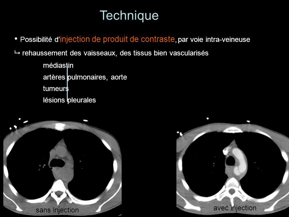 Technique Possibilité d'injection de produit de contraste, par voie intra-veineuse.  rehaussement des vaisseaux, des tissus bien vascularisés.