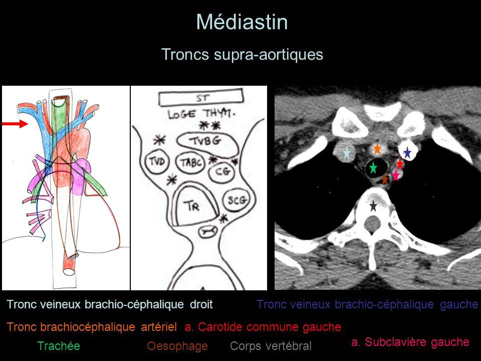 Troncs supra-aortiques