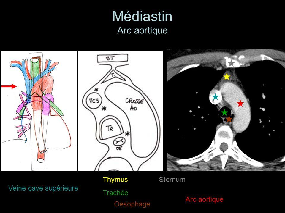 Médiastin Arc aortique