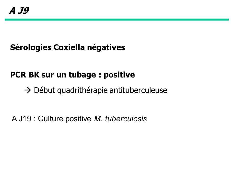 A J9 Sérologies Coxiella négatives PCR BK sur un tubage : positive