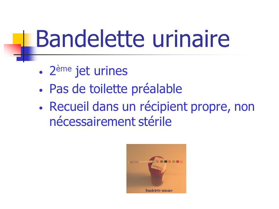 Bandelette urinaire 2ème jet urines Pas de toilette préalable