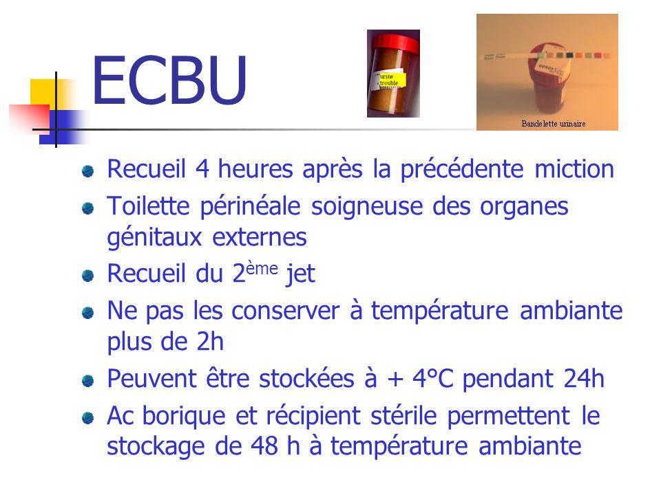 ECBU Recueil 4 heures après la précédente miction