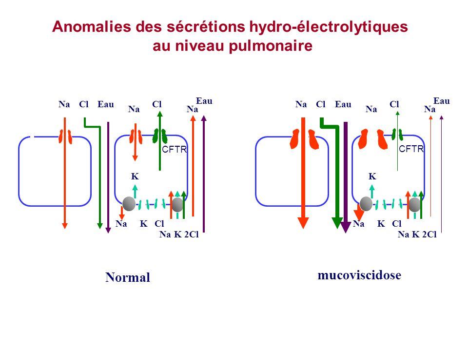 Anomalies des sécrétions hydro-électrolytiques au niveau pulmonaire