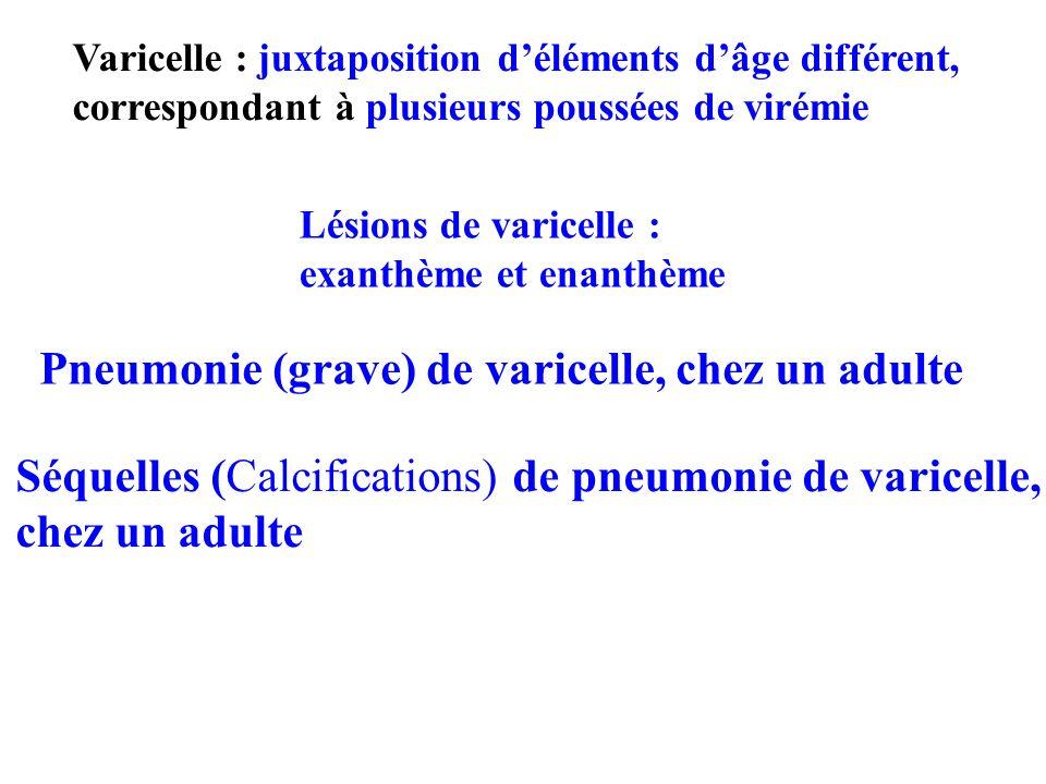 Pneumonie (grave) de varicelle, chez un adulte