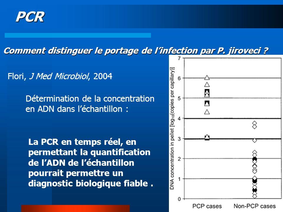 PCR Comment distinguer le portage de l'infection par P. jiroveci