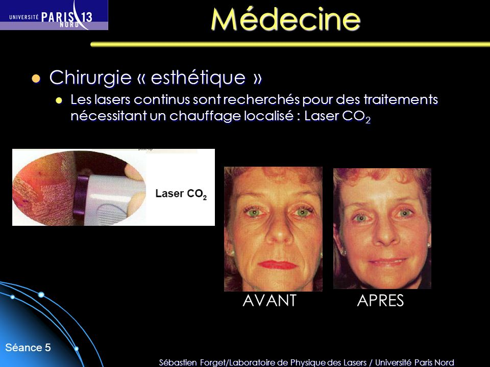 Médecine Chirurgie « esthétique » AVANT APRES