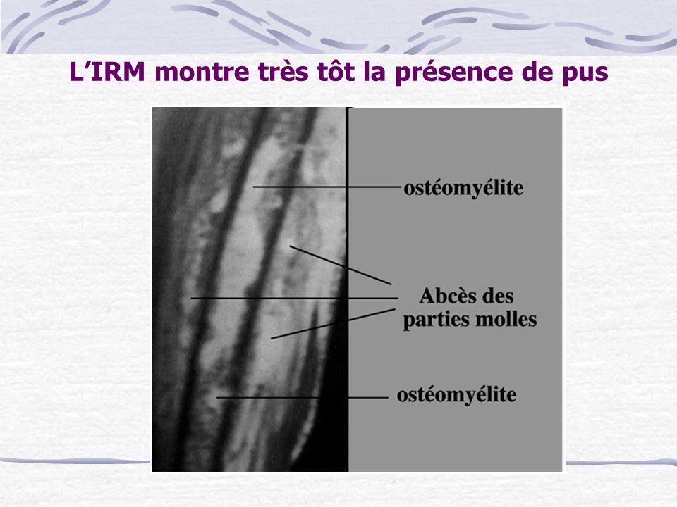 L'IRM montre très tôt la présence de pus