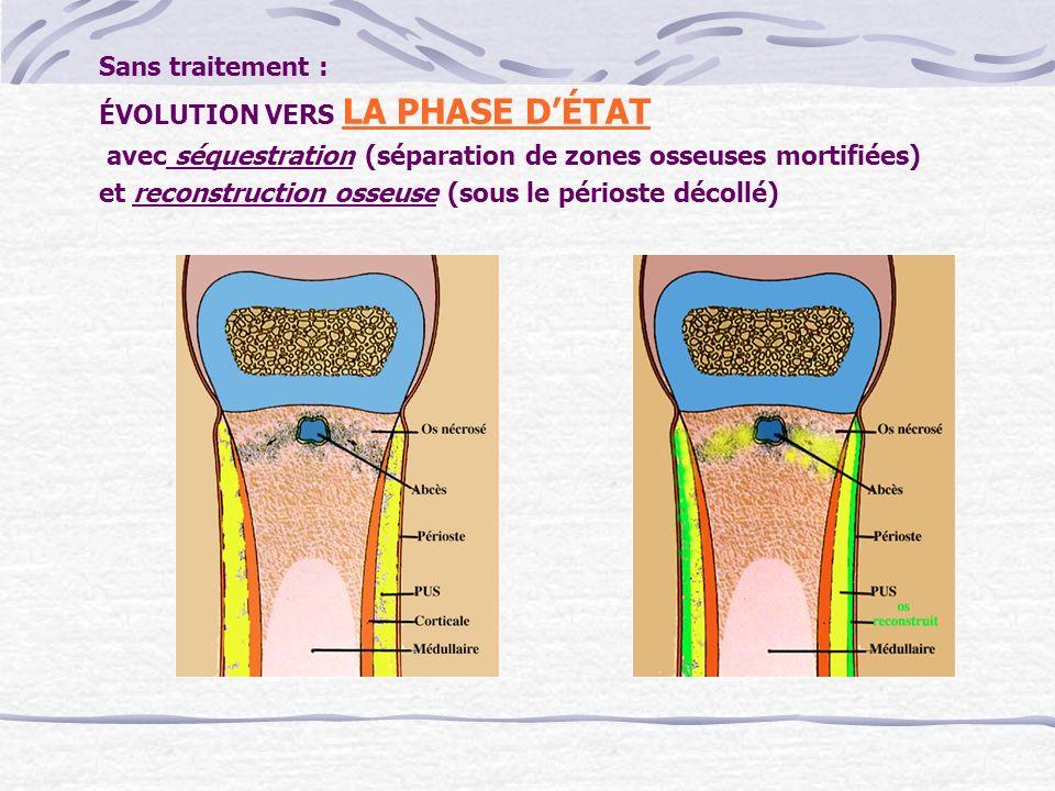 Sans traitement : ÉVOLUTION VERS LA PHASE D'ÉTAT. avec séquestration (séparation de zones osseuses mortifiées)