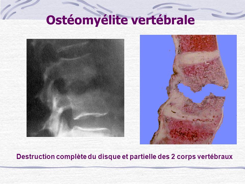 Ostéomyélite vertébrale
