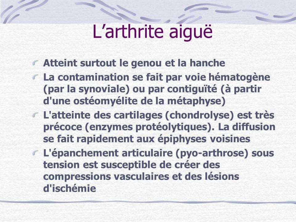 L'arthrite aiguë Atteint surtout le genou et la hanche