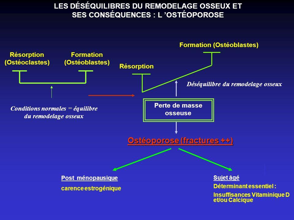 Ostéoporose (fractures ++)