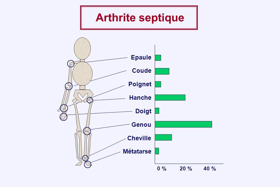 Arthrite septique Epaule Coude Poignet Hanche Doigt Genou Cheville