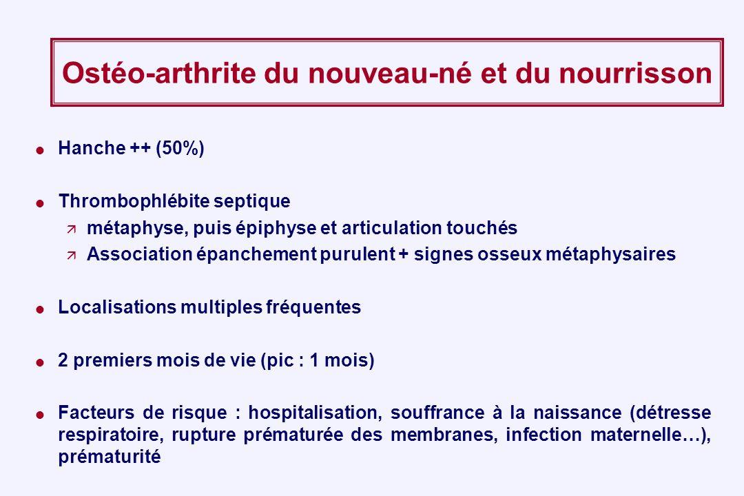 Ostéo-arthrite du nouveau-né et du nourrisson