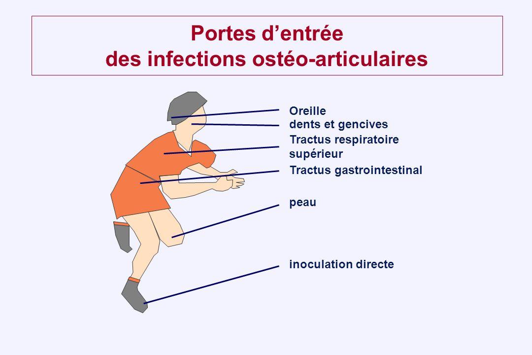 Portes d'entrée des infections ostéo-articulaires