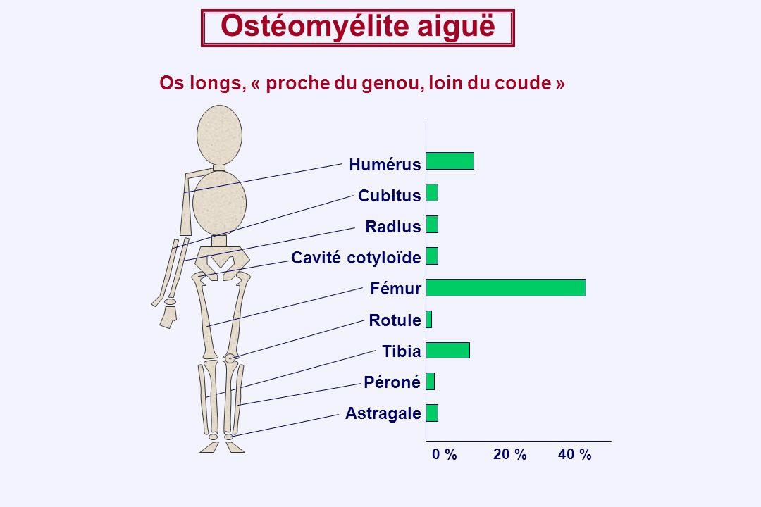 Ostéomyélite aiguë Os longs, « proche du genou, loin du coude »