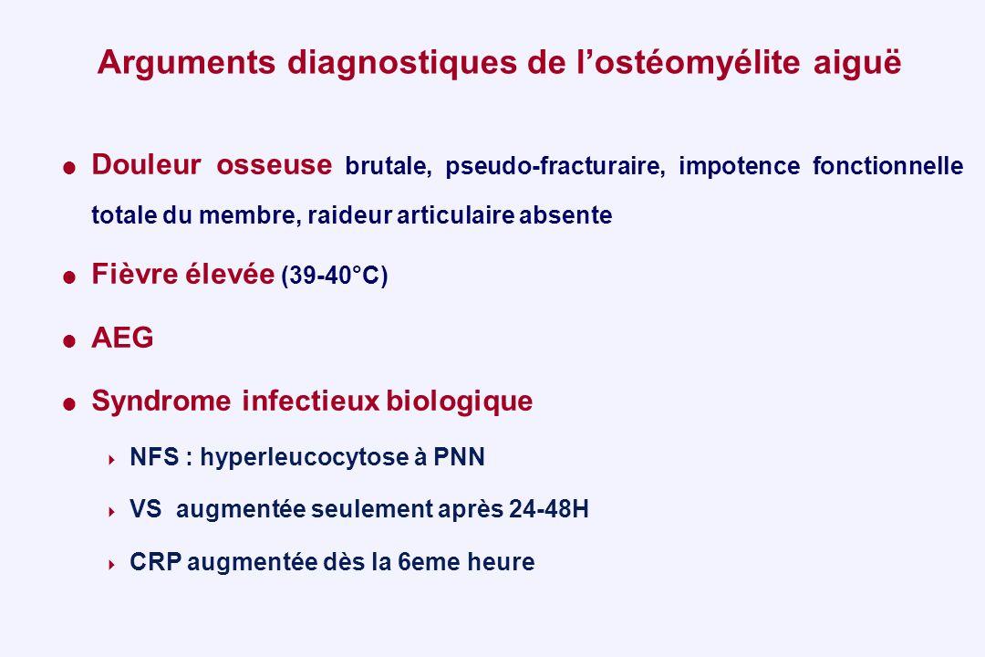 Arguments diagnostiques de l'ostéomyélite aiguë