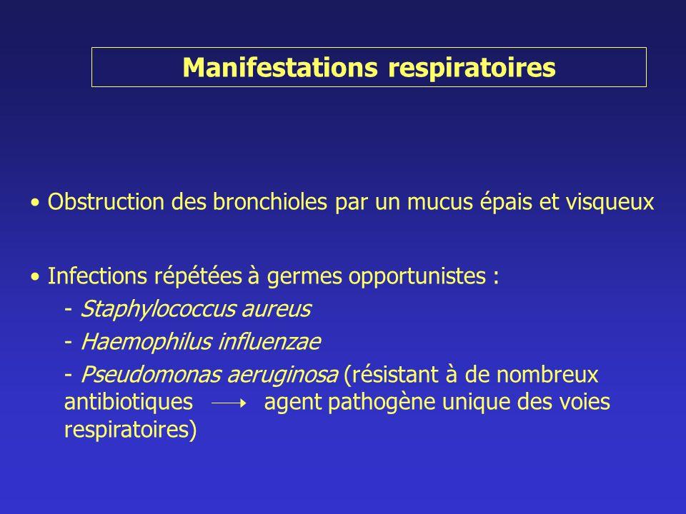 Manifestations respiratoires